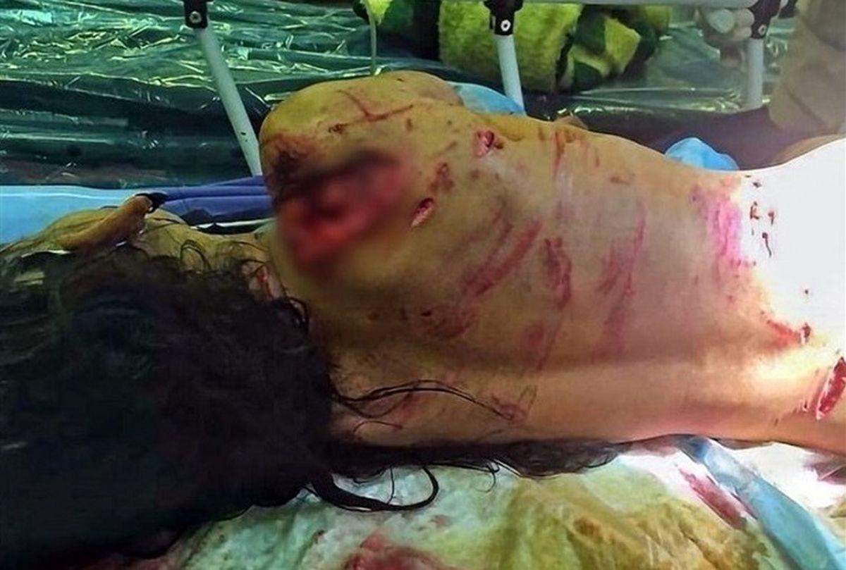 فیلم وحشتناک از حمله سگ های وحشی به دخترک بی نوا + فیلم حاوی صحنه های دلخراش است!