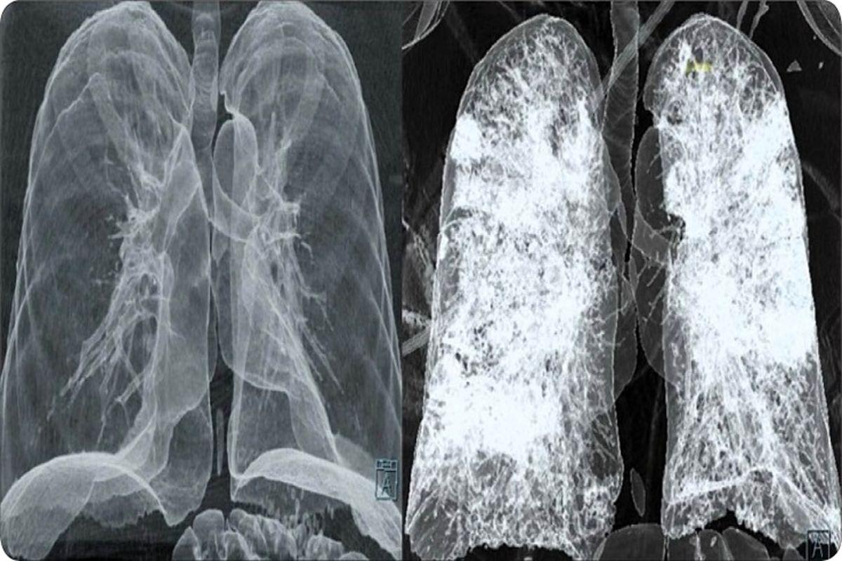 علائم مهم شروع درگیرشدن ریه های مبتلایان کرونا